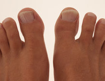 3 Potent Athlete's Foot Cures – Use These Strong Antifungal Remedies